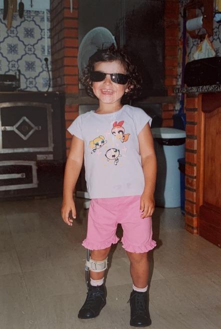 Susana com 3 anos, com um apoio lateral na perna. Fotografia cedida por Susana